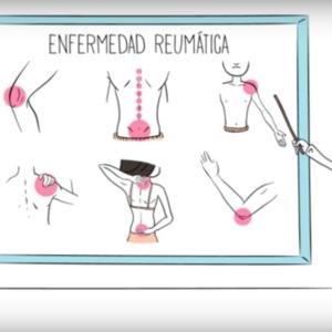 ¿Sabes qué hace un reumatólogo?